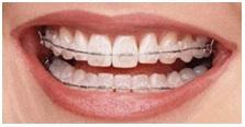 ceramic-braces1