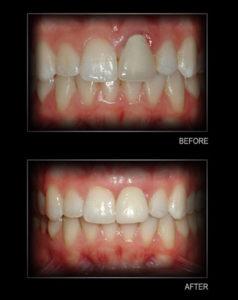 gum-tissue-graft